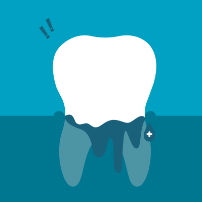 symptoms-of-gum-problems-4.jpg
