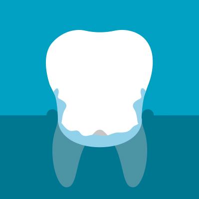 symptoms-of-gum-problems-6.jpg